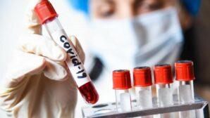 Ученые из ОАЭ разработали самый точный тест на COVID-19